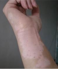 皮肤长白斑的原因